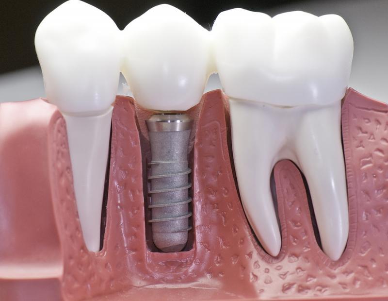 Временные коронки на импантаты зубов Гомель