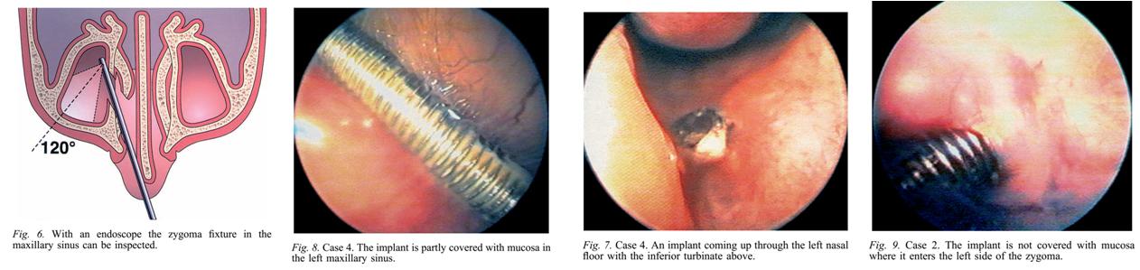 implantacia_sinus_2